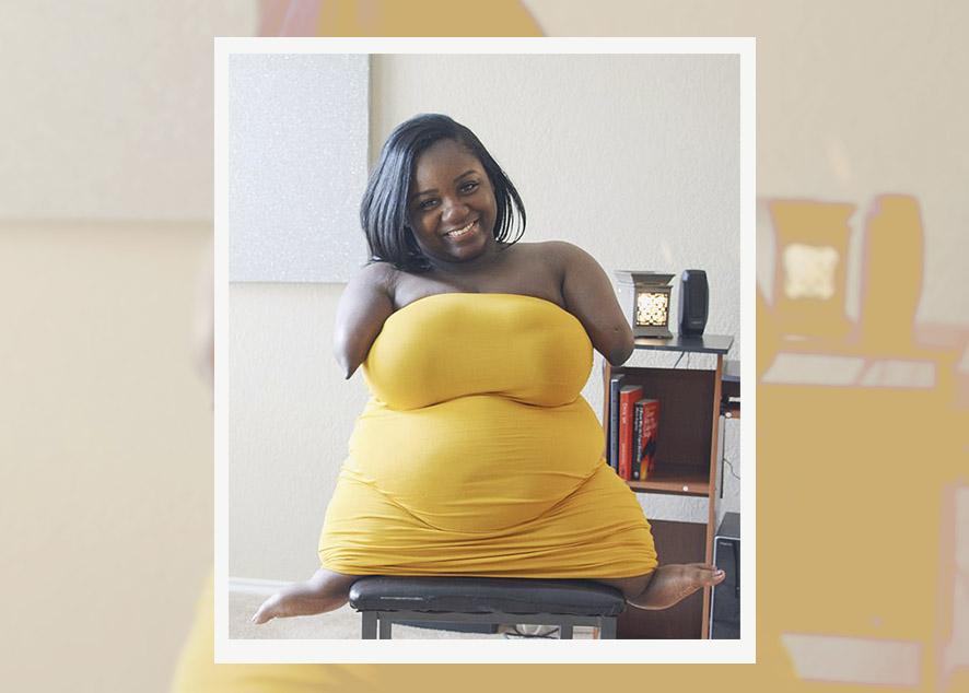 Полюбить тело с физическими недостатками очень сложно. Но Хасиди Янг смогла и теперь помогает другим сделать это.